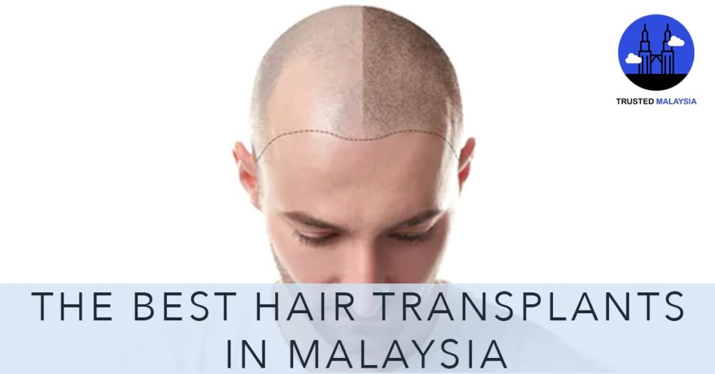 Best Hair Transplants in Malaysia